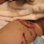 Dominic soleksy pit bull attack